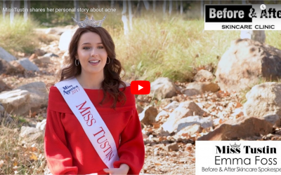 Miss Tustin, Official Spokesperson for Before and After Skincare Clinic