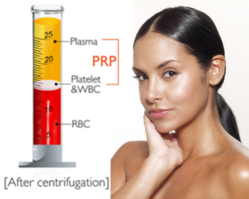 before and after skincare prp