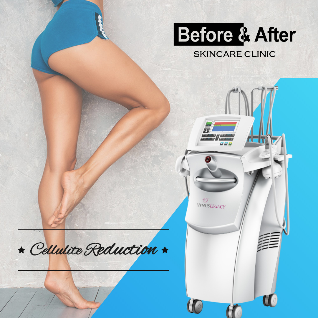 before and after cellulite reduction